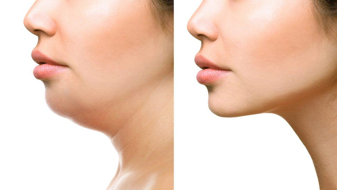 gıdı aldırma liposuction fiyat